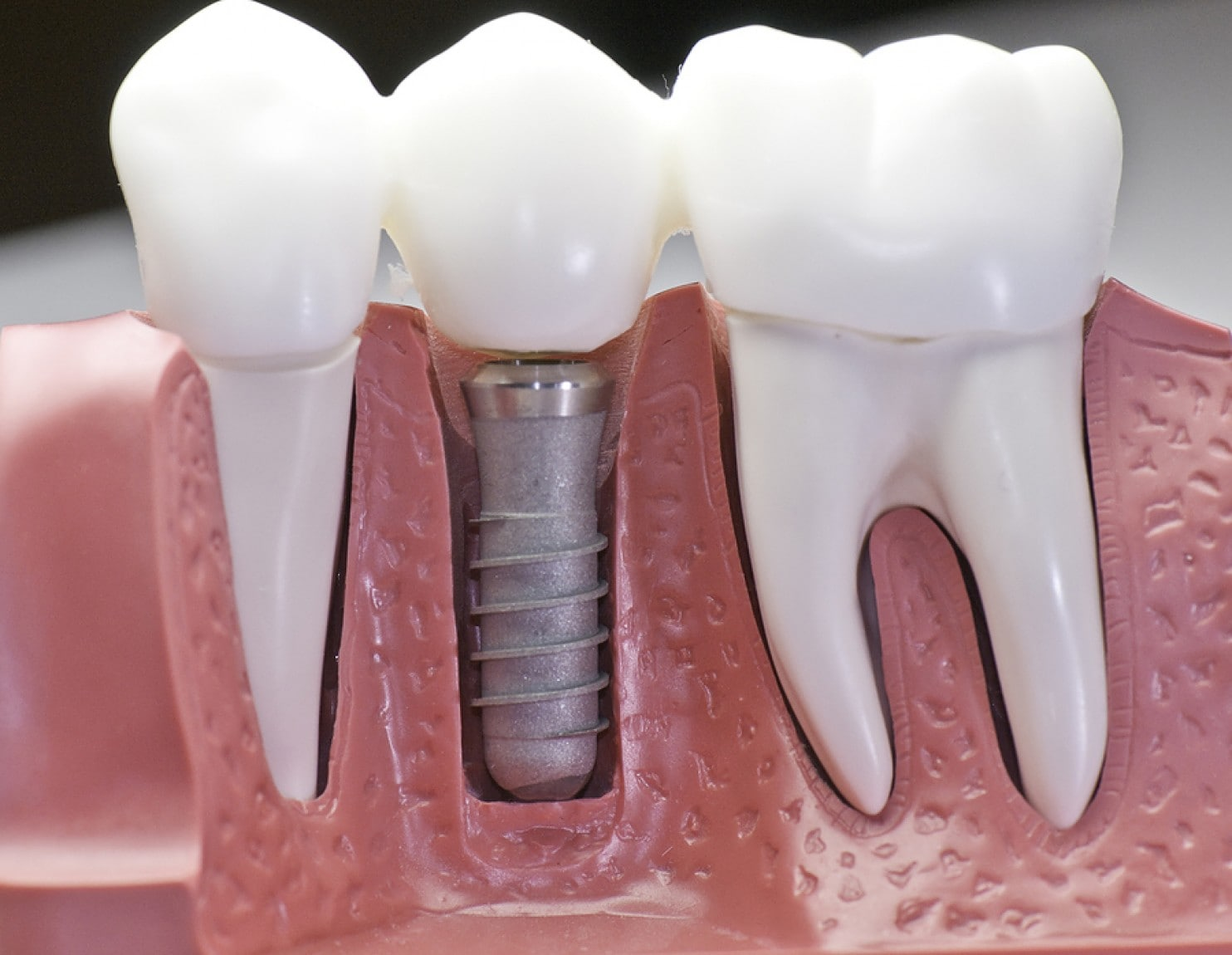all on 8 dental implants