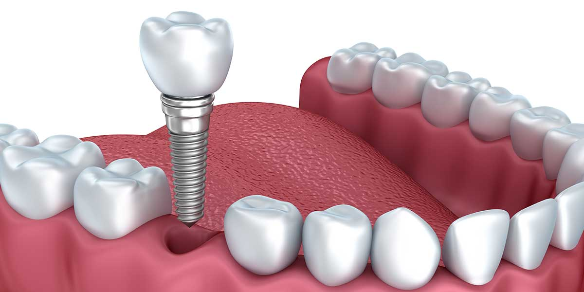 all on 6 dental implants